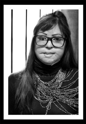 Monica Singh-Acid attack survivor
