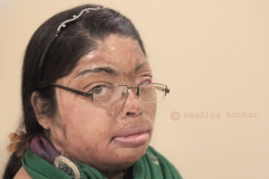 """I wondered why anyone would want to marry a girl like me?""-Archana Thakur, acid attack fighter."